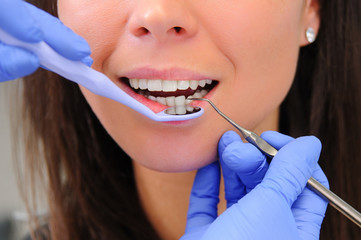 Woman dentist working at her patients teeth