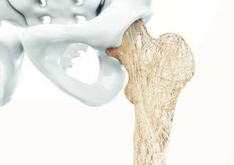 Osteoporosis - upper limb bones - 3d rendering