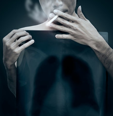 Handsome young man smoking dangerous cigarette with toxic lung smoke