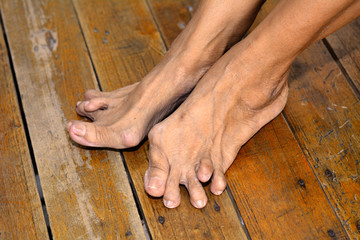 Old woman's foot deformed from rheumatoid arthritis