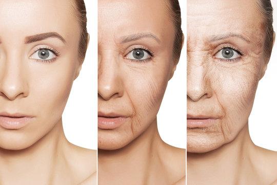 anti-aging procedures on caucasian woman face
