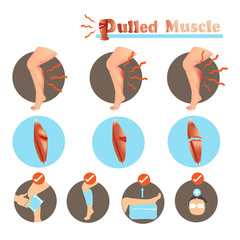 Muscle Strain Treatment Pulled Muscle degree and  Treatment isolated on white background.Vector illustrations