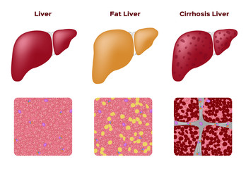 Normal liver Fatty liver and Cirrhosis liver vector