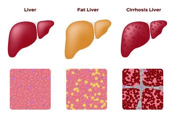 Normal liver Fatty liver and Cirrhosis liver vector