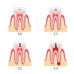 虫歯 断面図