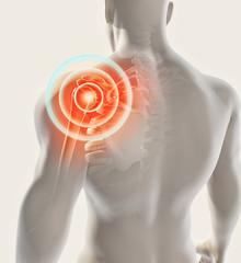 Shoulder painful skeleton x-ray, 3D illustration.