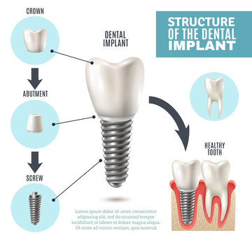 Dental Implant Structure Medical Infographic Poster