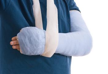 Broken arm in blue plaster cast and sling