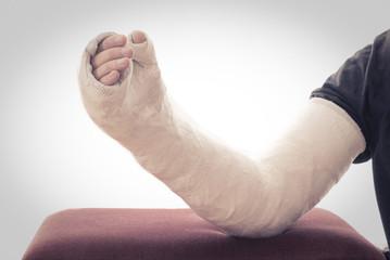 Long arm plaster / fiberglass cast resting on ottoman