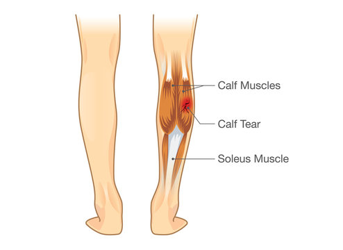 Calf muscle tear. Illustration about leg Injury from inflammatory.