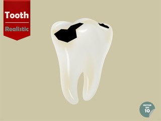 realistic decayed tooth, dental health concept