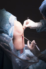 Surgical operation knee surgery