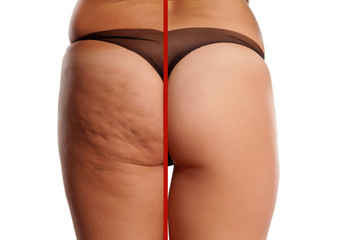 comparing female ass with and without cellulite