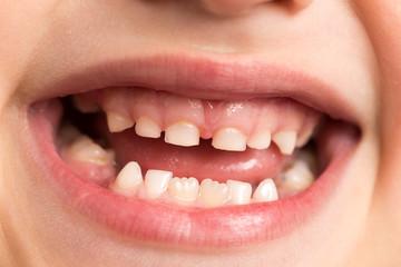 baby teeth. macro