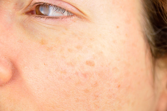 skin of woman with blemish and spots