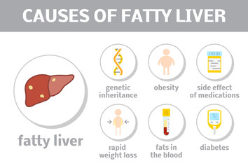 Causes of fatty liver