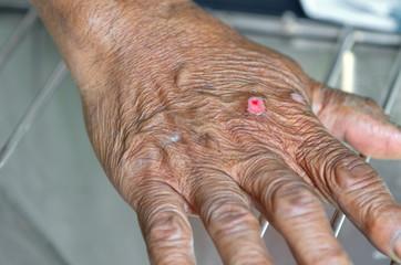 Dressing hand wound.