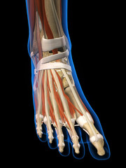 Woman X-ray Top View of Foot