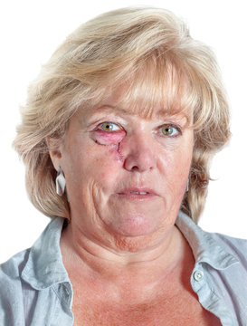 Mature woman with stitched cheek one day after Mohs surgery for Basal Cell Carcinoma