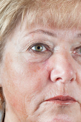 Mature woman with gradually fading scar one month after Mohs surgery for Basal Cell Carcinoma