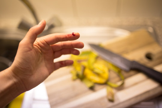 Ouch! Woman cut her finger while cooking a dinner in her kitchen.