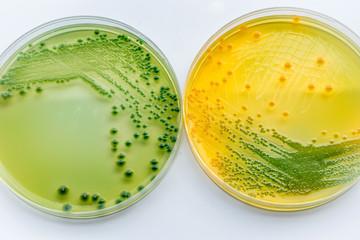 Vibrio parahaemolyticus and Vibrio cholera