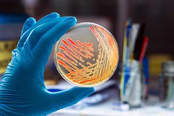 Colonies bacteria gram negative bacilli/ Gram negative cocco bac