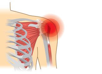 Human shoulder muscles and joints have a red signal. Illustration about chronic pain.
