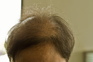 Problem hair, bald head in brown and grey hair woman