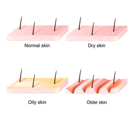 Normal, dry, oily, younger and older skin. sectional view