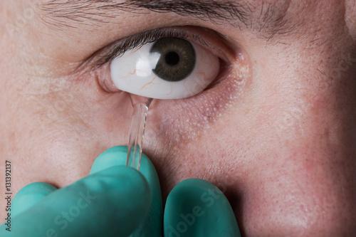 prothesis eye
