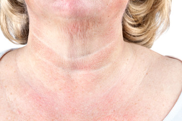 Crepe paper skin on the neck of a mature woman