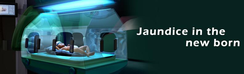 Jaundice in the new born