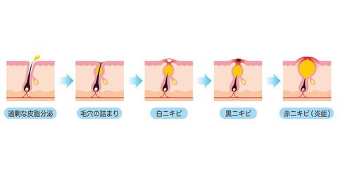 ニキビの進行 毛穴 断面図