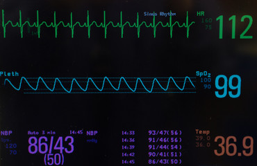 Monitor with a black background. The EKG or electrocardiogram showing normal sinus rhythm  ( green line),  oxygen saturation  ( blue line), blood pressure and temperature on pediatric patient.