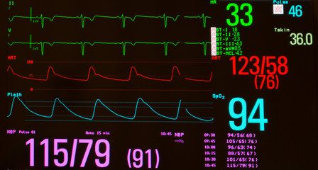 Monitor with EKG with significant sinus bradycardia (green line), arterial blood pressure  (red line), oxygen saturation (blue line) and noninvasive blood pressure against a black background