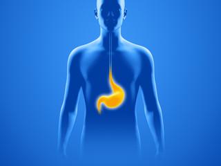 Magen mit Oberkörper-Silhouette – Magenbeschwerden und Sodbrennen