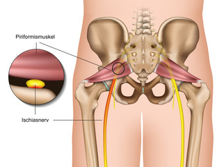 Piriformis syndrom, medical vector illustration