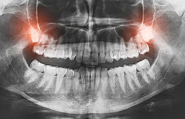 Closeup of x-ray image growing wisdom teeth pain concept.