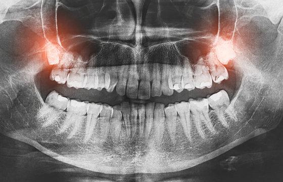 Closeup of x-ray image growing wisdom teeth pain concept.