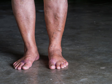 The varicose veins on a legs