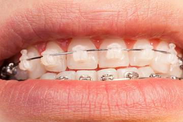 Ceramic and metal orthodontic cases on teeth