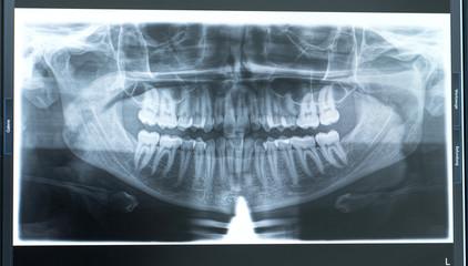 Röntgenbild von Gebiss auf Monitor fotografiert