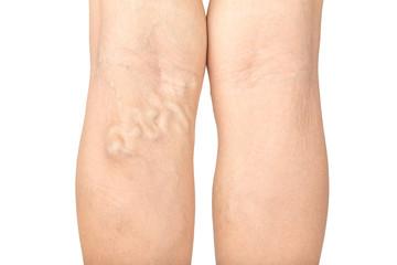 Varicose veins in the legs