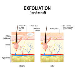 Exfoliation or peel is cosmetic procedures