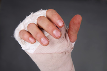 Bandaged broken hand