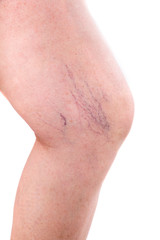 leg with spider veins