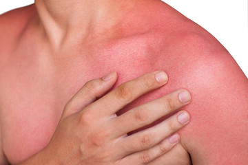 A man with reddened itchy skin after sunburn. Skin care and protection from the sun's ultraviolet rays.