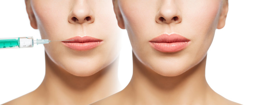 woman before and after lip fillers injection
