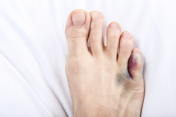 Foot with broken toe on sheet Wall mural